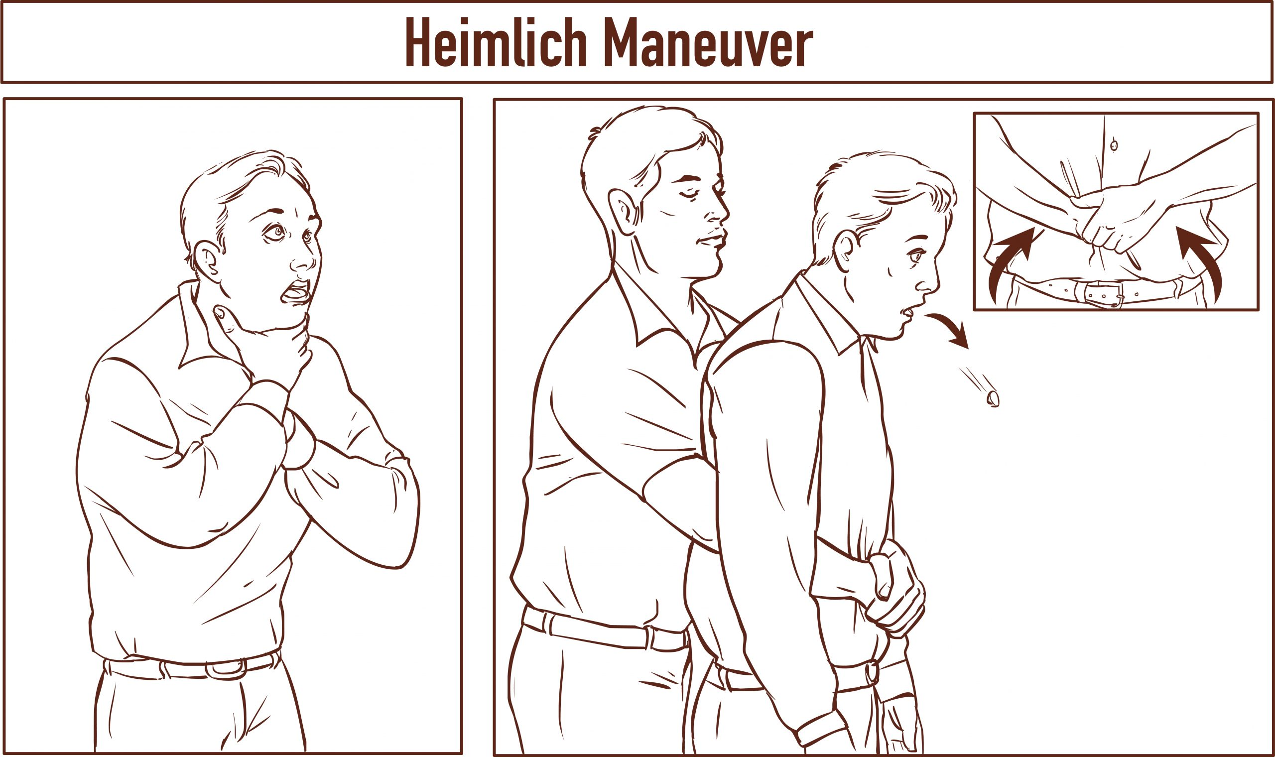 illustration of Heimlich Maneuver